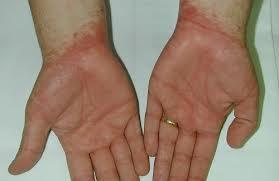 Alergia o dermatitis por contacto, crédito de alergiaweb.com